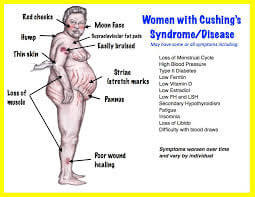 What Are The Symptoms of Cushing's Syndrome?