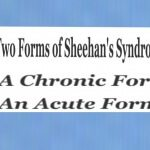 Types of Sheehan's Syndrome