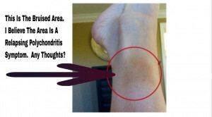 Is This A Relapsing Polychondritis Symptom?