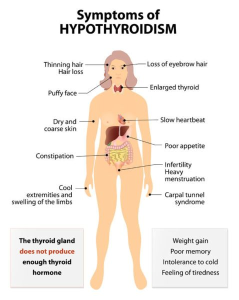 What Are The Symptoms Of Hypothyroidism