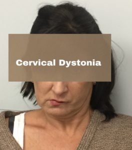 what is cervical dystonia