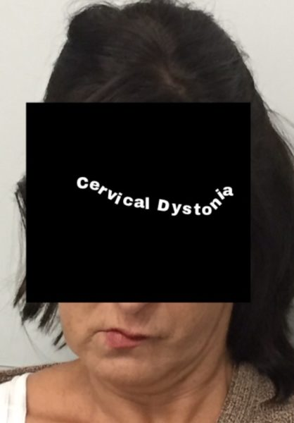 what is cervical dystonia my story