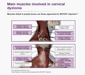 WHY I use Botox to treat Cervical Dystonia
