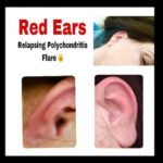 Relapsing Polychondritis Causes Red Ears