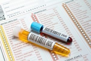 Relapsing Polychondritis lab tests