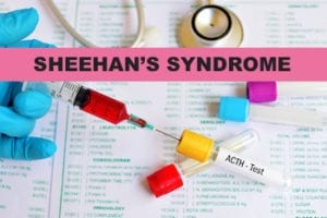 what are the symptoms of sheehan's syndrome